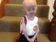 Tin tức - Bé gái 5 tuổi hóa bà lão vì căn bệnh hiếm gặp