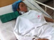 Tin tức - Siêu lọc máu cứu bé gái bị ong đốt 115 nốt