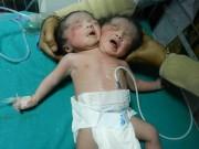 Tin quốc tế - Người dân đổ xô đến bệnh viện xem bé gái 2 đầu