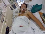 Bà bầu - Mẹ bầu bị tai nạn gẫy 18 chiếc xương sườn vẫn cố cứu thai nhi