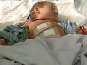 Tin tức - Đi chữa đau mắt, cháu bé 2 tuổi phải mổ cấp cứu vì giun đục thủng ruột thừa
