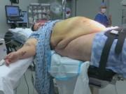 """Bà bầu - Bà mẹ nặng 200kg và ca sinh mổ khiến bác sĩ như """"ngồi trên đống lửa"""""""
