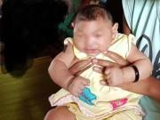 Tin tức - Việt Nam lần đầu phát hiện bé gái nghi mắc dị tật đầu nhỏ do Zika