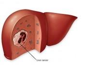 Sức khỏe - Người béo phì, đái tháo đường đề phòng ung thư gan