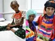 Tin tức - Ám ảnh thiếu nữ 18 tuổi bị suy dinh dưỡng, thân thể chỉ còn nhúm xương