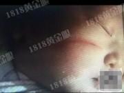 Tin tức - TQ: Mẹ sinh mổ, em bé vừa sinh ra đã bị rách mặt bởi sự bất cẩn của bác sĩ
