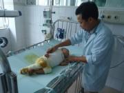 Tin tức - Xót xa cháu bé 17 tháng tuổi ngã vào nồi canh bị bỏng toàn thân