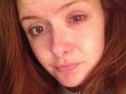 Tin tức - Cô gái 23 tuổi suýt bị mù mắt vì sai lầm khi đeo kính áp tròng