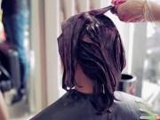 Làm đẹp - Cô gái trẻ da đầu lở loét, tóc bong từng mảng vì sở thích đổi mốt nhuộm tóc