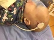 Tin tức - Ngã từ giường xuống đất, bé trai 2 tuổi bị phích điện cắm xiên vào não