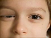 Sức khỏe - 5 dấu hiệu bất thường trên mặt cảnh báo các bệnh nguy hiểm