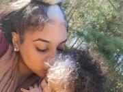 Tin tức - Kỳ lạ em bé sinh ra với chỏm tóc trắng trên trán
