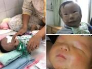 Những ca 'siêu âm thai bình thường, sinh con dị dạng' khiến cha mẹ chết lặng