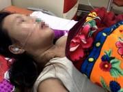 Tin tức - Chồng đánh vợ tổn thương sọ não, nhập viện cấp cứu