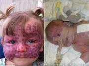 Làm mẹ - Khuôn mặt khác lạ sau phẫu thuật của bé gái bị chàm trên mặt