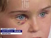 Tin tức - Người đàn ông bại não ở Úc tấn công bé gái 5 tuổi vì ham muốn tình dục