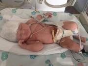 Bà bầu - Mang thai khỏe mạnh, mẹ trẻ 'khóc ngất' khi thấy con thế này sau sinh mổ