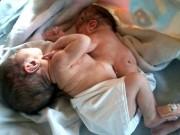 Bà bầu - Không đi siêu âm thai, mẹ khóc nghẹn khi thấy con chào đời thế này