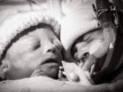 Tin tức - Hình ảnh 7 ngày cuối cùng của bé trai mắc hội chứng truyền máu song thai gây xúc động