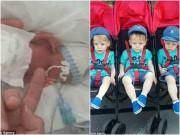 Phép màu kỳ diệu xảy ra với ca sinh 3 bé trai nặng chỉ 0,4kg