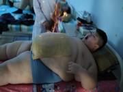 """Hình ảnh cậu bé 11 tuổi đau đớn điều trị béo phì khiến người lớn """"rùng mình"""""""