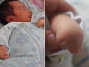 6 lần siêu âm thai đều bình thường, bố mẹ 'chết lặng' khi thấy con vừa chào đời