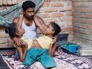 Tin tức - Điều kỳ diệu về 5 cặp song sinh nữ dính liền nổi tiếng thế giới