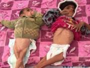 Tin tức - Nhìn vào những bức ảnh trẻ em này ai cũng rùng mình bởi sự thật thảm khốc của chiến tranh