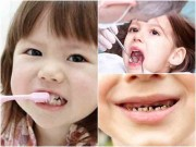 """Làm mẹ - Chăm sóc răng cho con sai cách, chẳng mấy chốc bé sẽ """"móm cả hàm"""""""