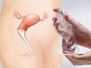 Bà bầu - Đây chính là những cách tránh thai tiện lợi, hiệu quả nhất cho mẹ sau sinh
