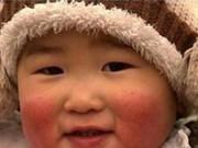 """Làm mẹ - Mẹo dân gian bôi một lần ăn ngay giúp con mùa đông không còn """"má nẻ cà chua"""""""