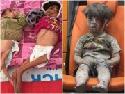 Làm mẹ - Nhói lòng xem những bức ảnh đau thương nhất 2016 về trẻ em