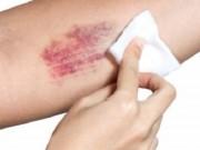 Tin tức - Chủ quan với vết bầm tím trên da, nam bệnh nhân tử vong vì xuất huyết não