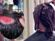 Tin tức - Nhuộm tóc mừng ngày sinh nhật, cô gái lãnh hậu quả hói đầu cả đời