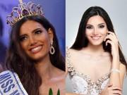 Tân Hoa hậu thế giới bị chê kém sắc vì khuôn miệng rộng kém sang