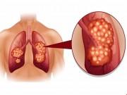 Sức khỏe - Những dấu hiệu không ngờ của bệnh ung thư phổi
