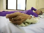 """Tin tức - Nhiều năm ăn chay vẫn mắc ung thư gan, khi biết nguyên nhân người bệnh đã """"đứng hình"""""""