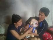 Ngày mới - Bủn rủn khi nhìn gương mặt của bé gái 5 tuổi bị ung thư võng mạc