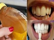 Không còn hôi miệng và hàm răng ố vàng chỉ sau vài lần súc miệng với loại nước này