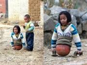 Làm mẹ - Bé gái tàn tật có nửa thân dưới là một quả bóng rổ, khi lớn khiến triệu người ngưỡng mộ