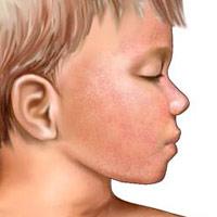 Triệu chứng và nguyên nhân bệnh sốt phát ban