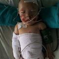 Tin tức - Bé 6 tháng bỏng nặng vì mẹ dùng than sưởi ấm