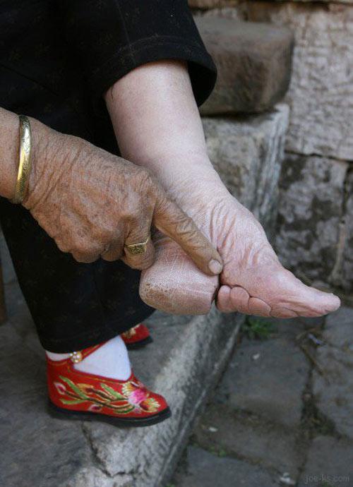 10 kiểu giày kỳ quái trong lịch sử thời trang-17