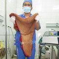 Tin tức - Cô gái với khối u khổng lồ, kỳ quái