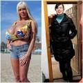 Làm đẹp - 2 phụ nữ: ngực ngày càng to, chân càng dài