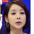 Làm đẹp - Cô gái Hàn đẹp sau 120 lần phẫu thuật