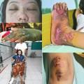 Tin tức - Hong Kong: Rúng động chủ tra tấn người giúp việc
