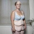 Làm đẹp - Một phụ nữ xấu xí vì giảm cân nhanh