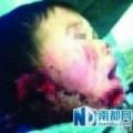 Tin tức - Phẫn nộ bé trai 6 tuổi bị thím ruột cắt đứt tai