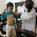 Tin tức - Nhập khẩu khẩn cấp 77.600 liều vắc xin thủy đậu